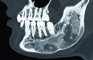 Oral Pathology Brisbane